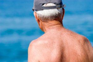 Zuviel UV-Strahlung ist eine der Hauptursachen für Hautkrebs. Quelle: Shutterstock.com