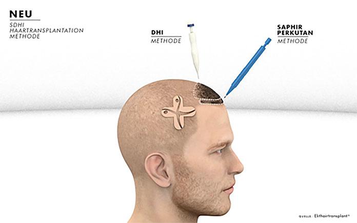 Mit modernen Verfahren können die Transplantationen heute durchgeführt werden. Bildquelle: © Elithairtransplant