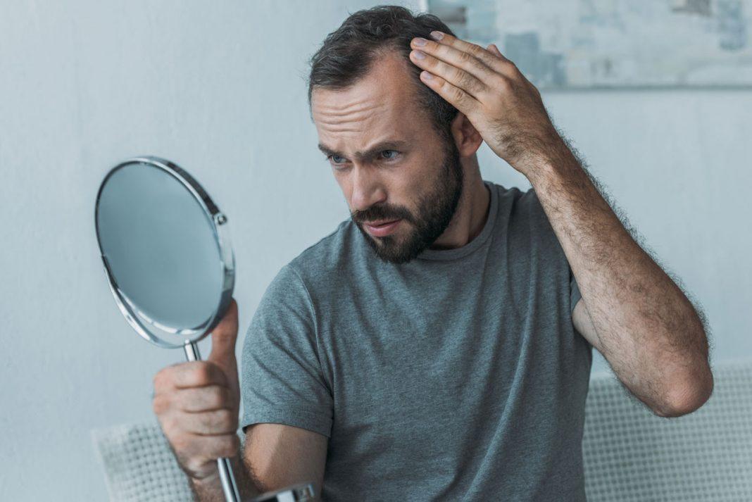 Haarausfall bei Männern und Frauen kann ganz unterschiedliche Ursachen haben. Bildquelle: canva